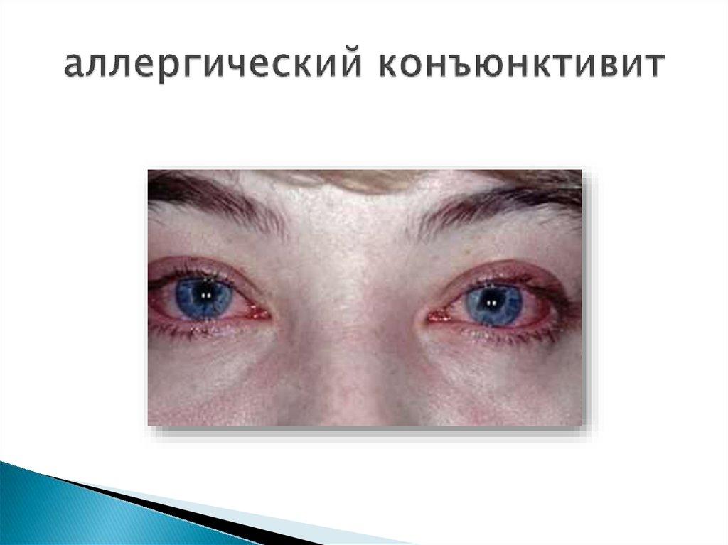 Аллергический конъюнктивит симптомы фото