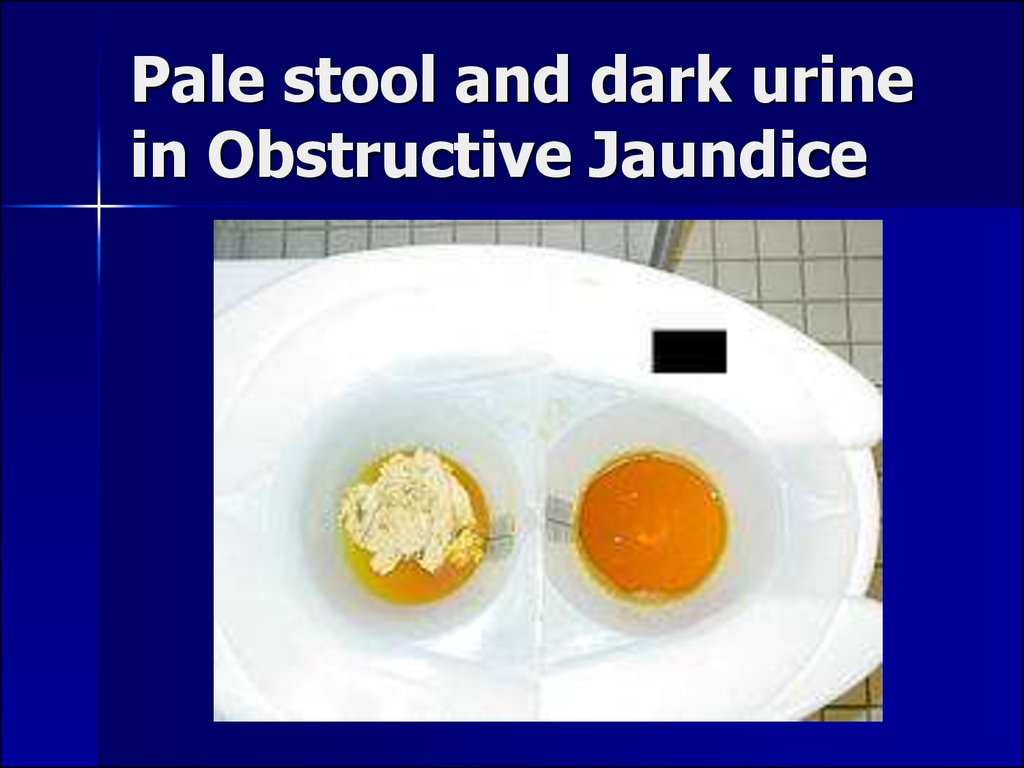 Pale stool and dark urine in Obstructive Jaundice