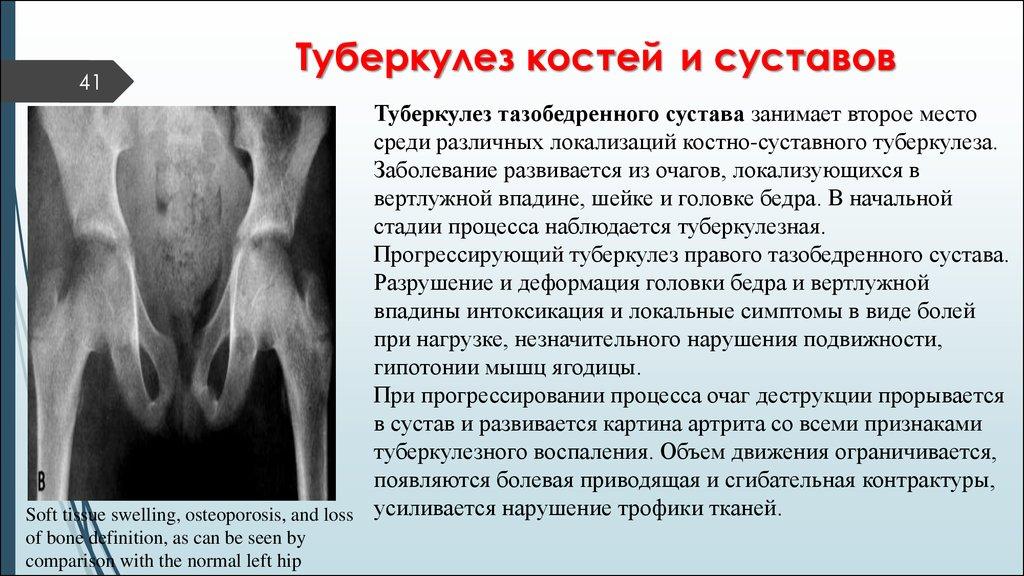 Костно-суставной туберкулез исходы плечевой сустав.строение.функции