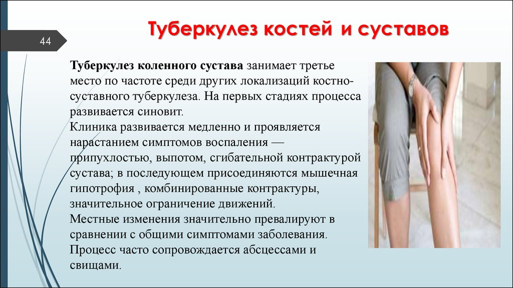 Местные симптомы костно-суставного туберкулеза уколы в колено сустава от артроза