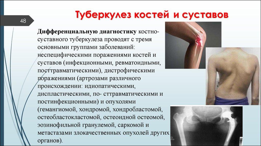 Костно-суставной туберкулез исходы цитомегаловирус болит тазобедренный сустав