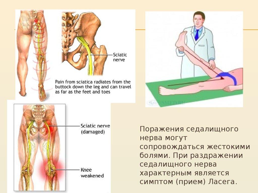 Поражение плечевого сплетения и восстановление после травм плеча