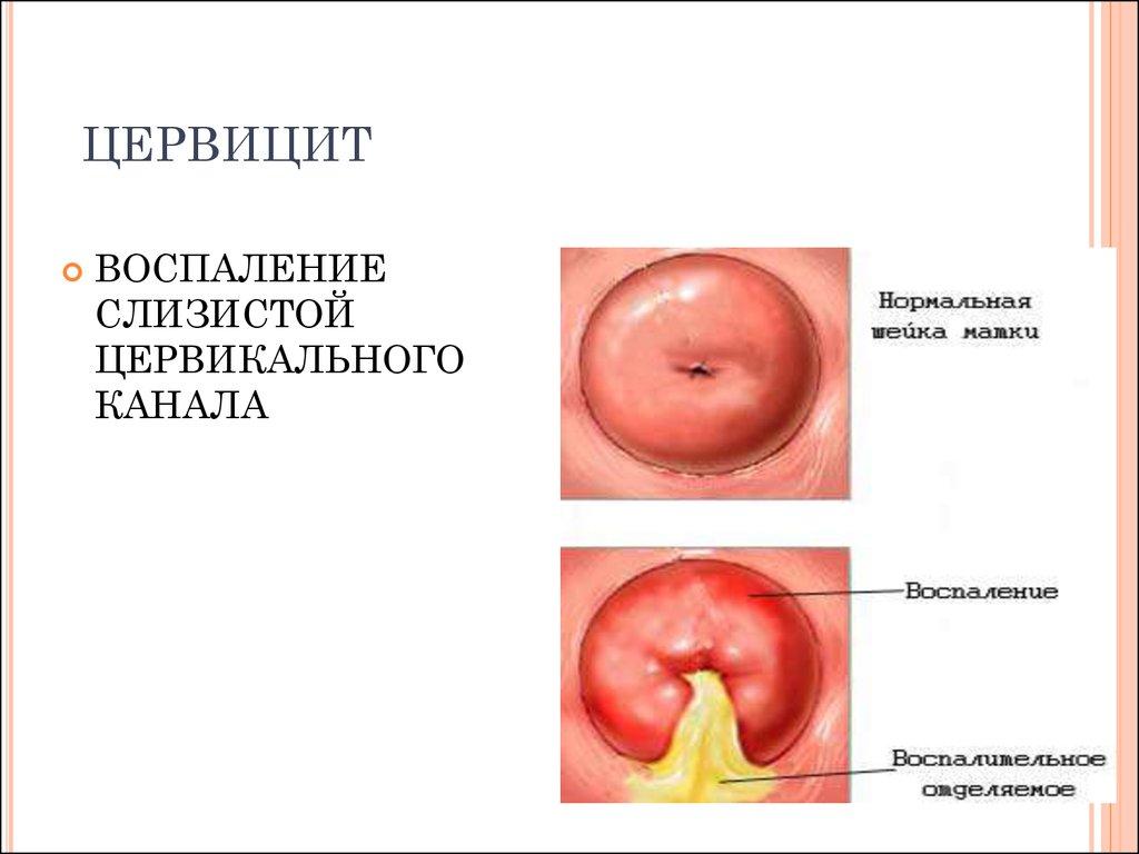 цервицит при Mycoplasma genitalium