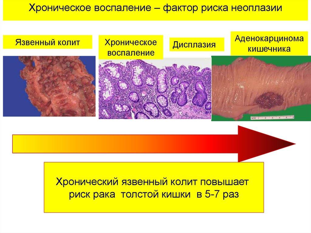 аутоиммунная аллергия