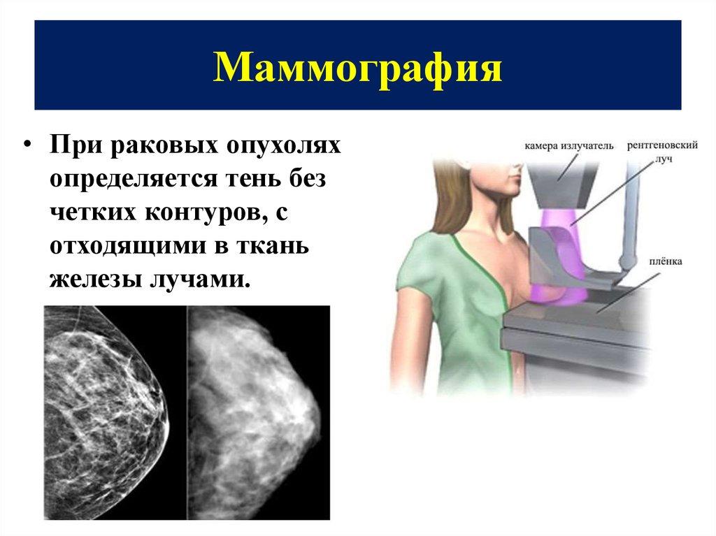 Маммография делается на какой день цикла
