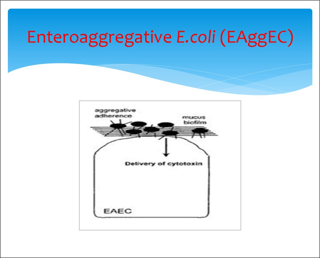 Enteroaggregative E.coli (EAggEC)