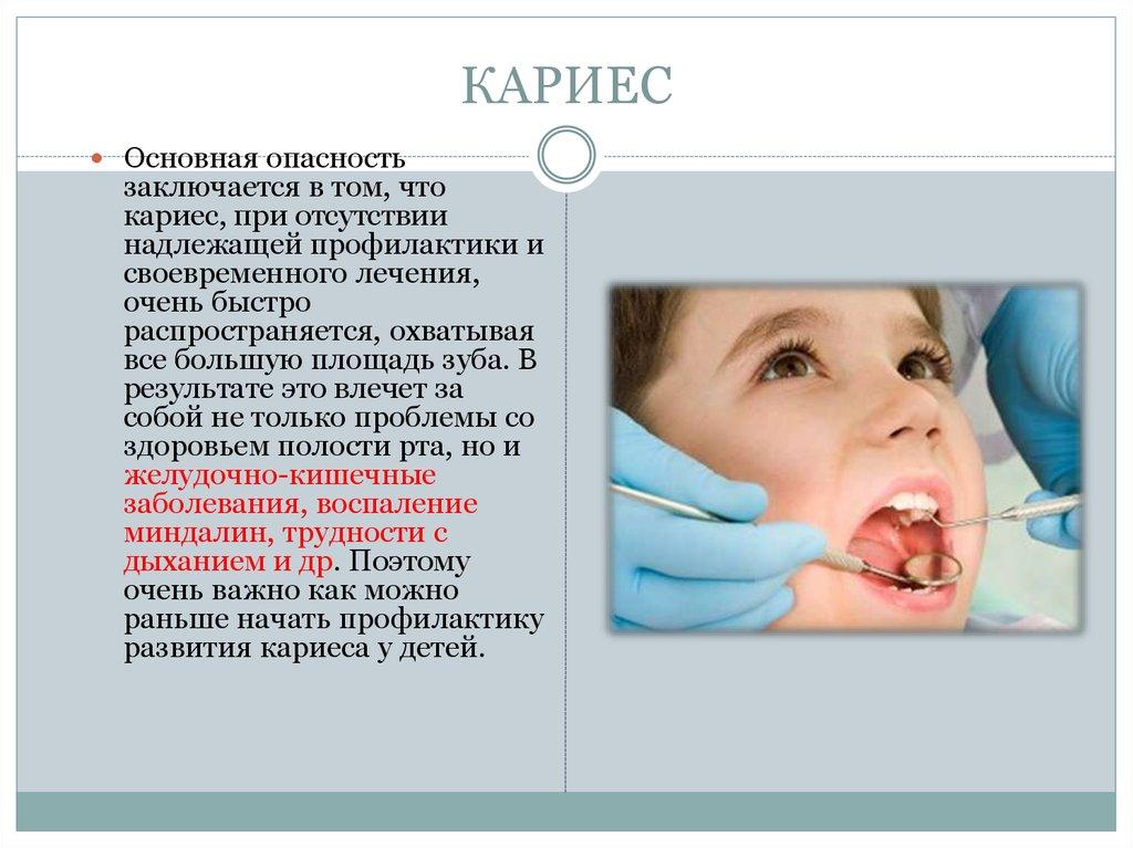 Вторичная профилактика кариеса зубов