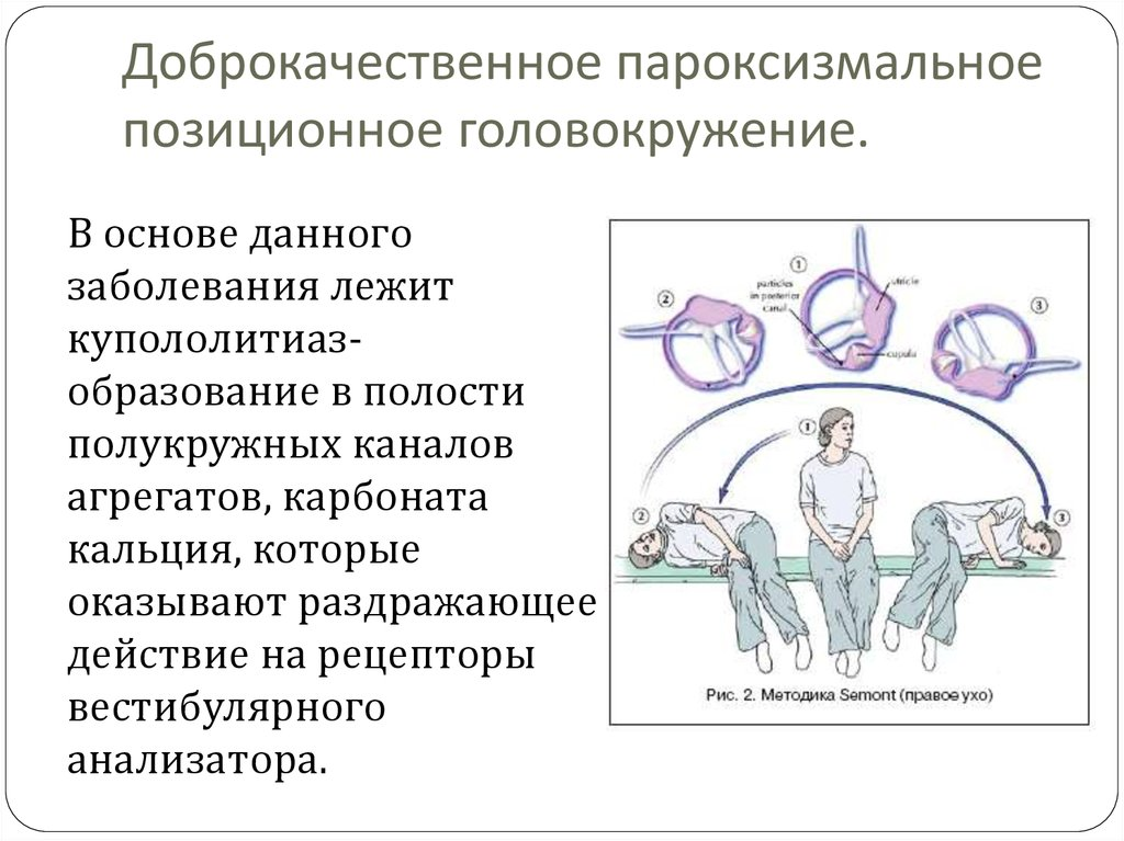 Как вылечить позиционное головокружение