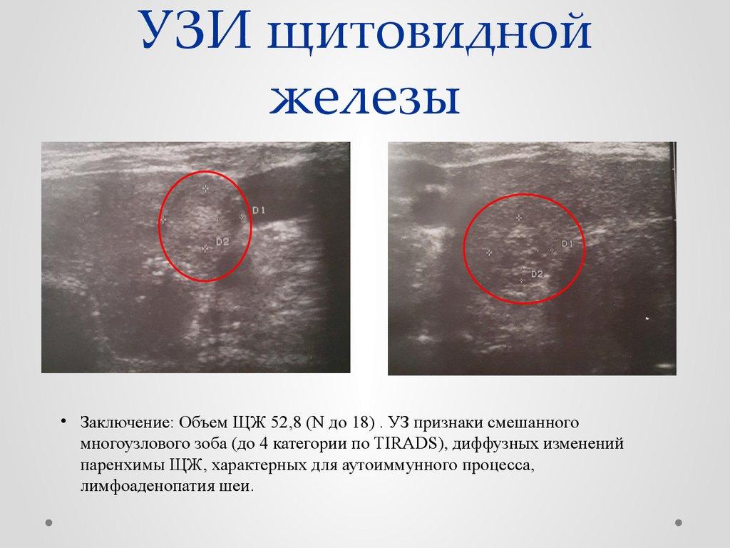 Узи щитовидной железы диффузный зоб