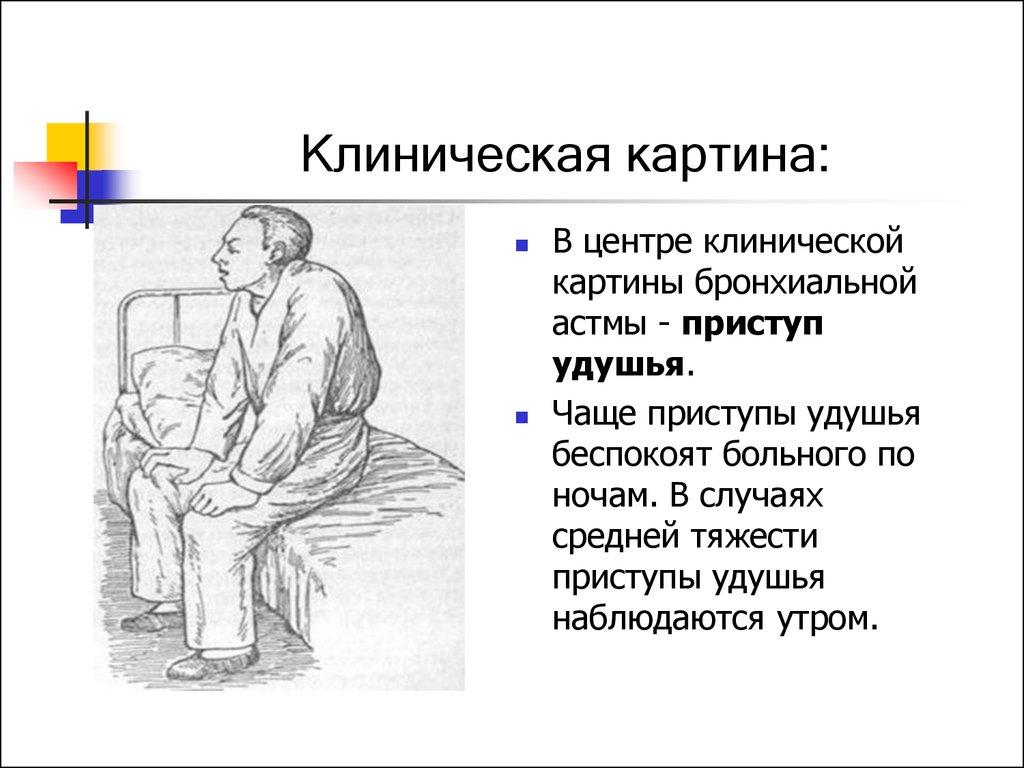 Сестринский уход за пациентами с бронхиальной астмой презентация   бронхиальной астмы Клиническая картина