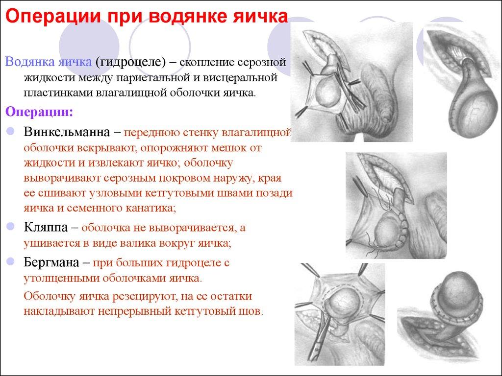 Операция по удалению водянки яичка у ребенка