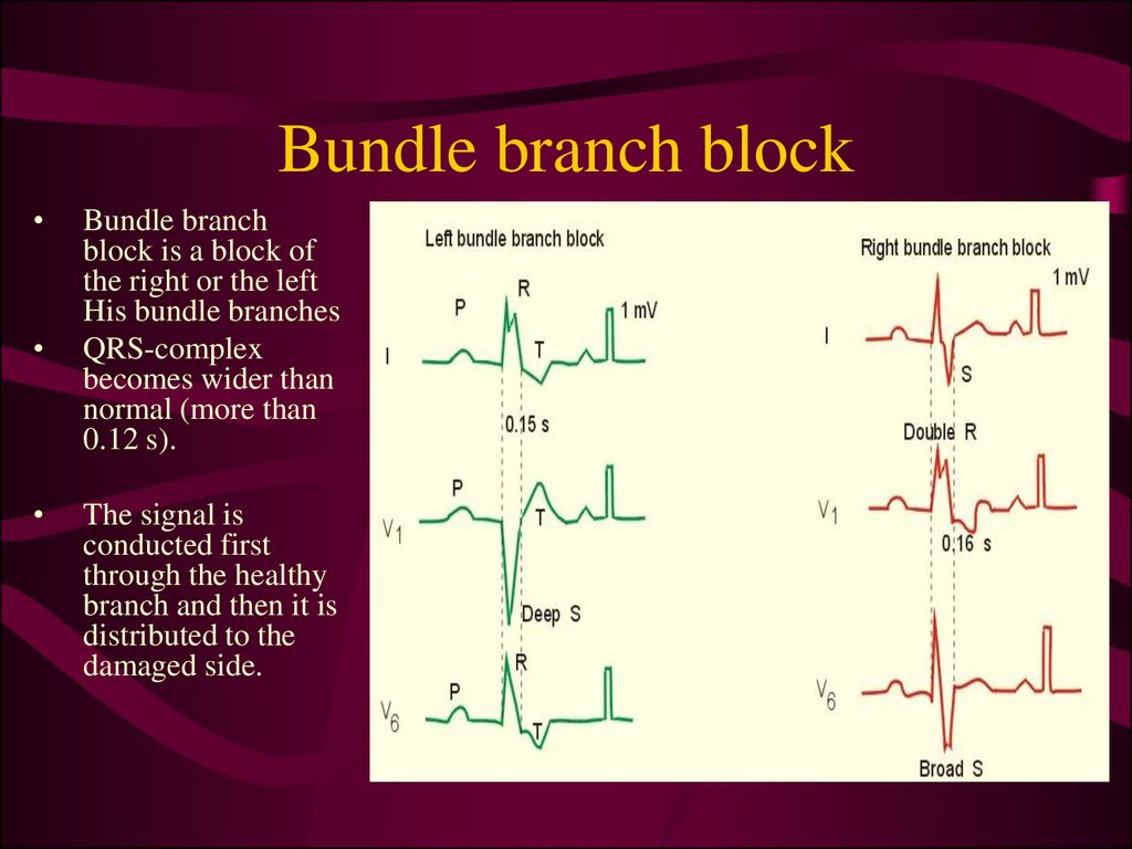 Bundle branch block
