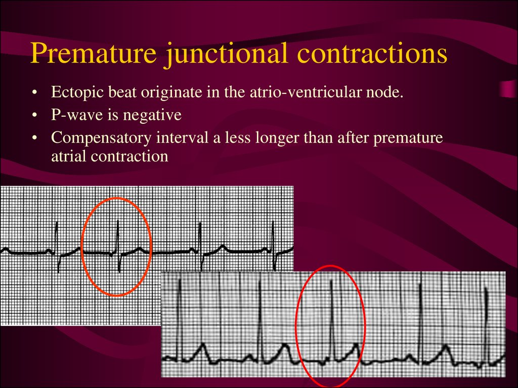 Premature junctional contractions