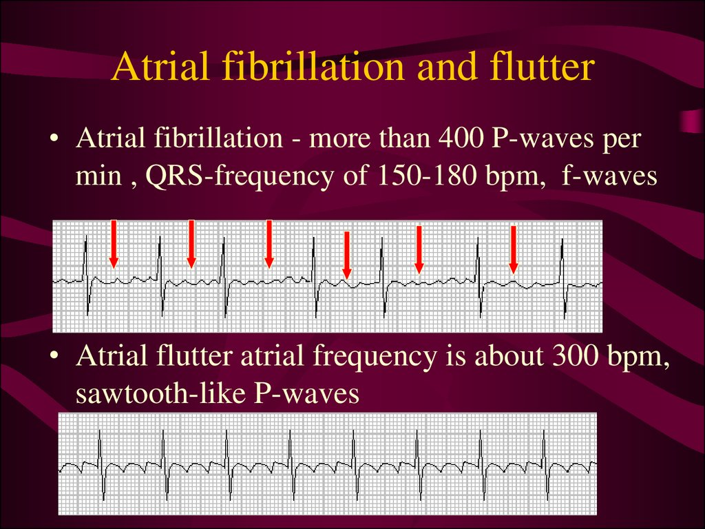 Atrial fibrillation and flutter