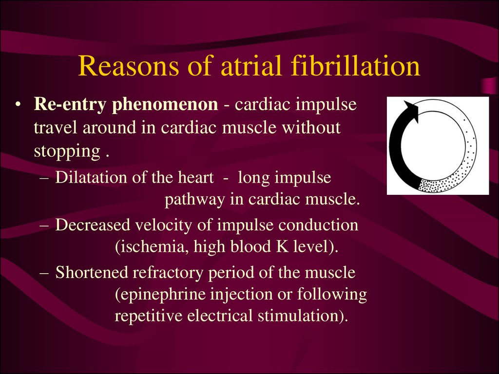 Reasons of atrial fibrillation