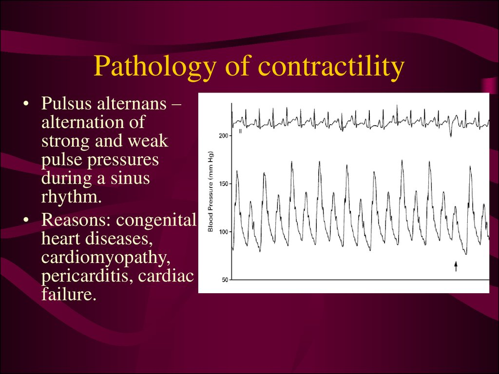 Pathology of contractility