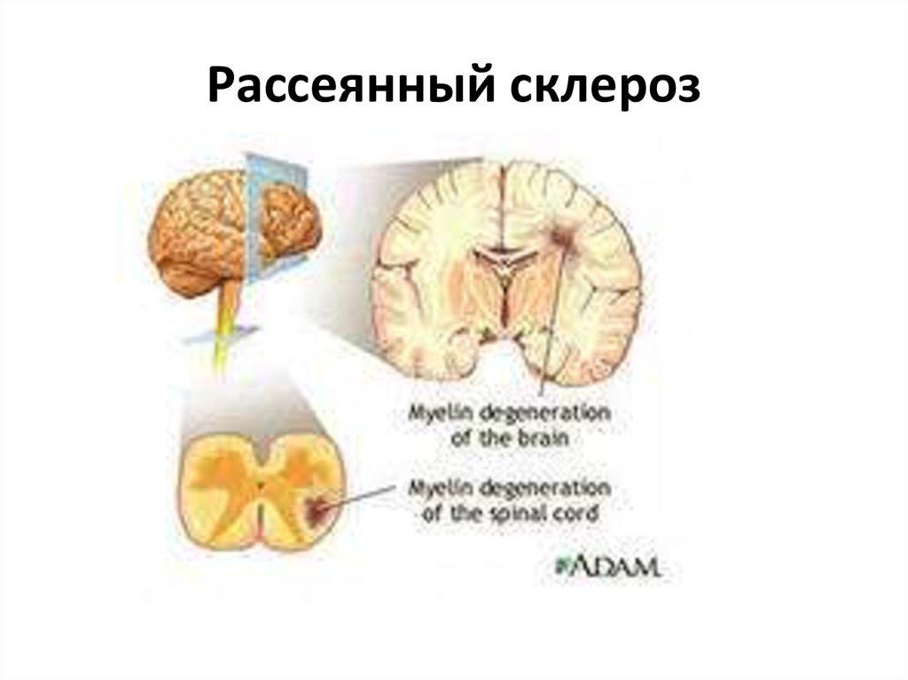 Рассеянный склероз снимки