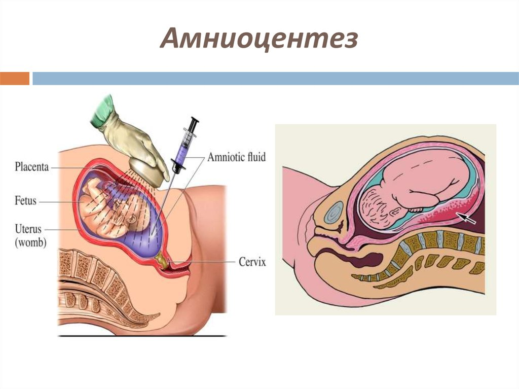 amniocentesis essay A amniocentesis amniocentisis is the most common prenatal test performed today (morris, 1993) while the test is not totally risk free, estimated fetal loss due to amniocentesis is less than 05 percent (o'connor, 1989.
