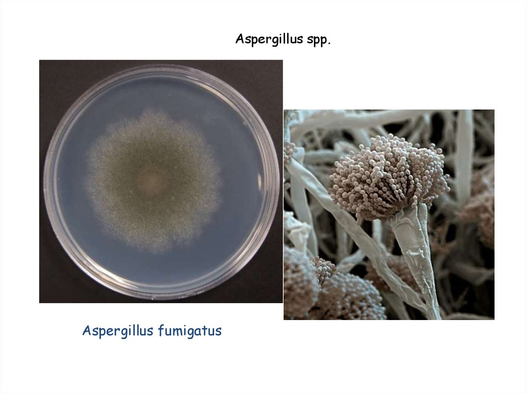 the effects of asperguillus Aspergillus fumigatus is the most toxic of the aspergillus mold family people who are exposed to this type of mold can develop hypersensitivity to the mold, causing them to potentially develop a severe allergy to it.