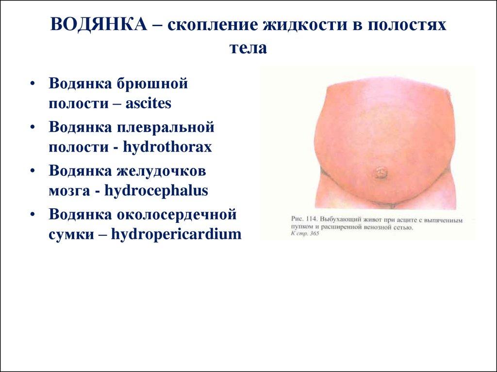 Скопление жидкости в брюшной полости лечение