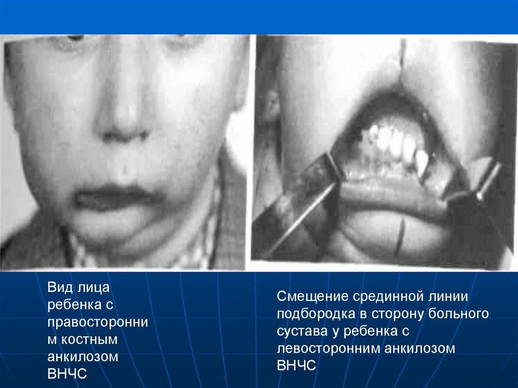 Реферат болезни височно-нижнечелюстного сустава у детей артриты артрозы анкилозы бассейн при дисплазии тазобедренных суставов у детей