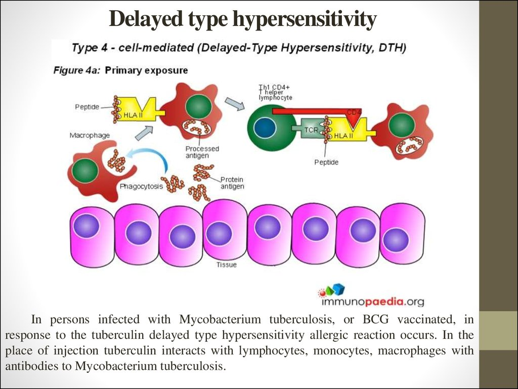 Delayed type hypersensitivity