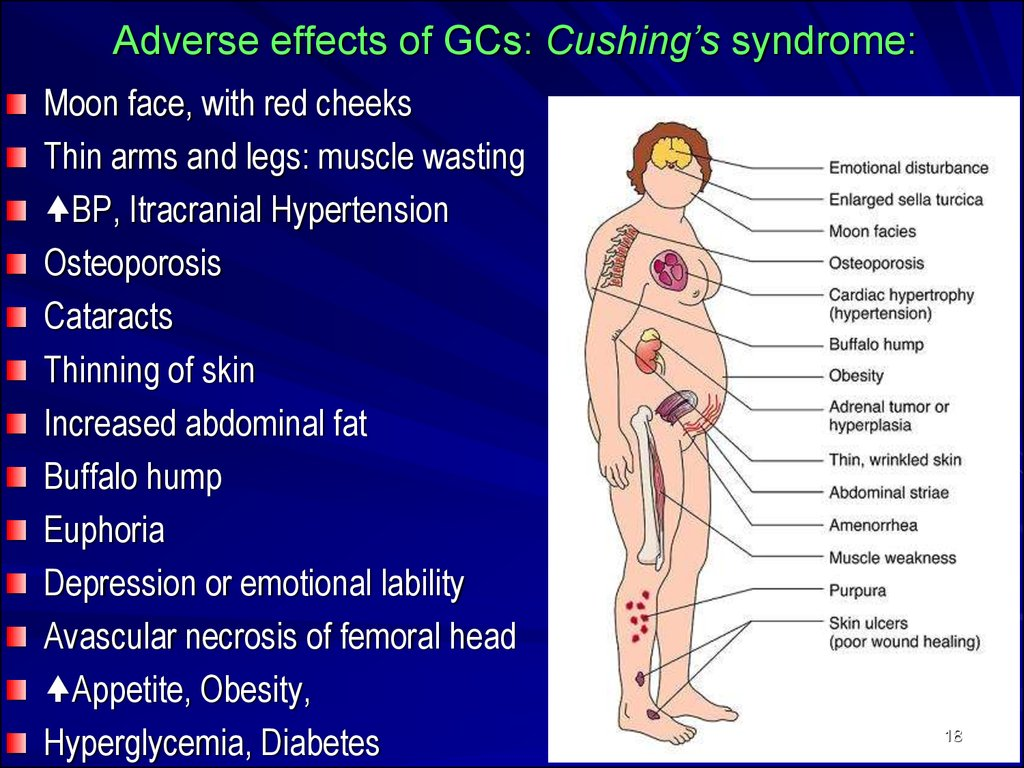 Adverse effects of GCs: Cushing's syndrome: