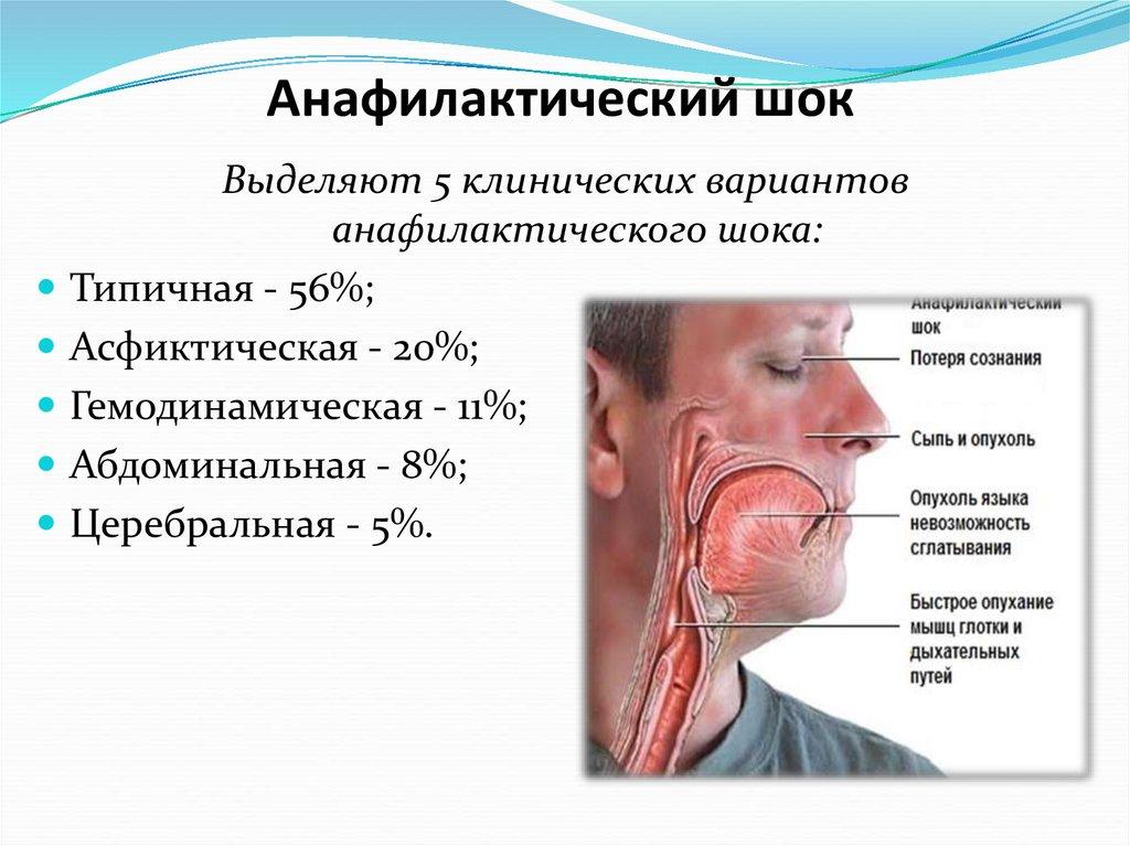 Анафилактический шок клиника диагностика неотложная помощь