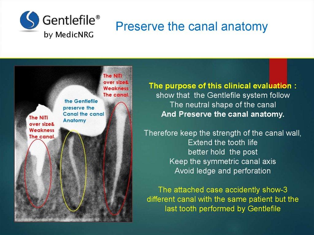 Preserve The Canal Anatomy Online Presentation