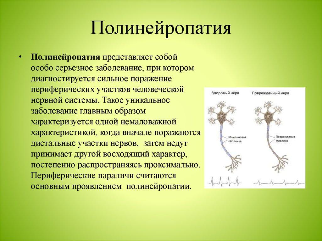 Сенсорная полинейропатия нижних конечностей лечение