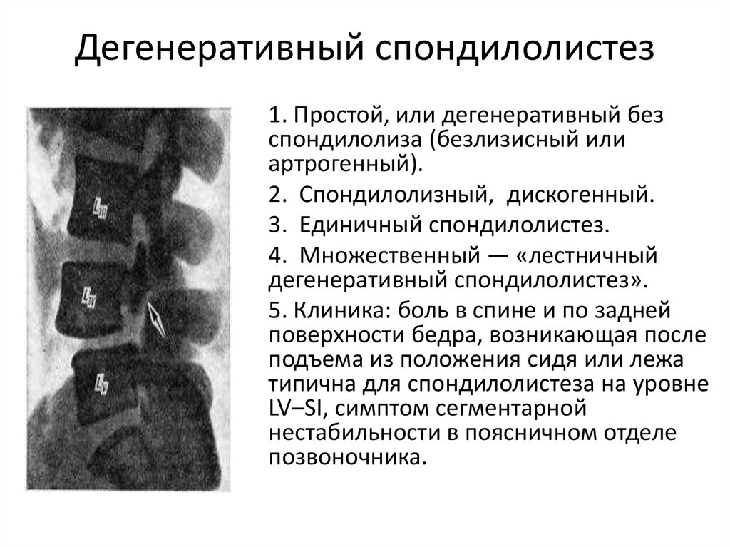 spondylolthesis Medical definition of spondylolisthesis: forward displacement of a lumbar vertebra on the one below it and especially of the fifth lumbar vertebra on the sacrum producing pain by compression of nerve roots.