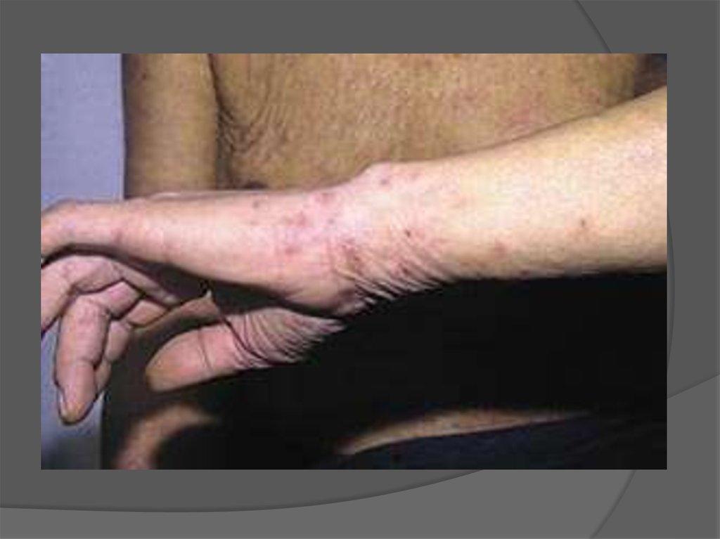 кожное детское заболевание