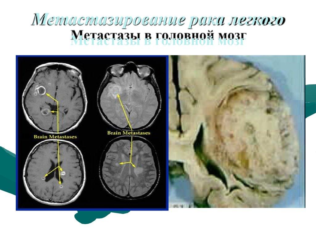 Рак простаты с метастазами в мозг