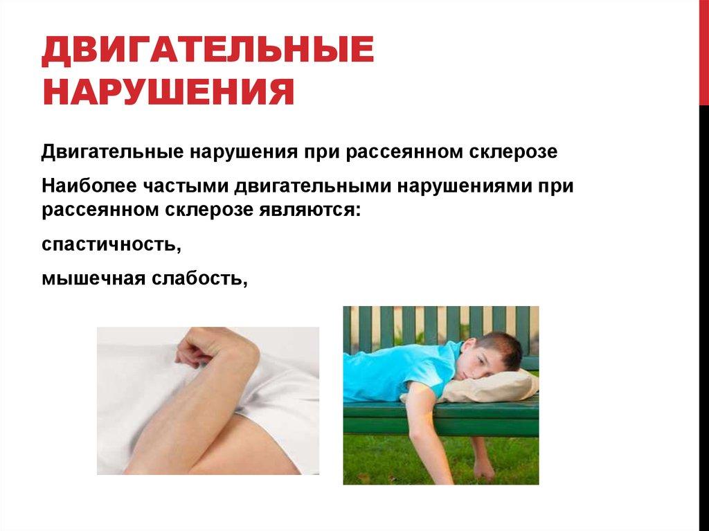 Боли при рассеянном склерозе лечение