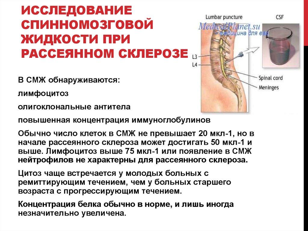 С Какими Заболеваниями Путают Рассеянный Склероз