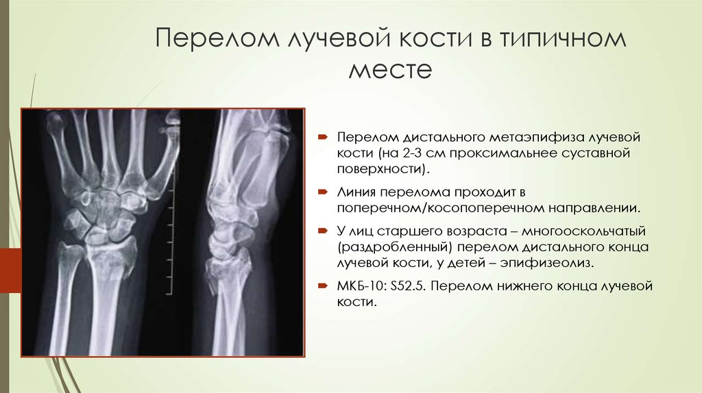 После перелома лучевой кости форум