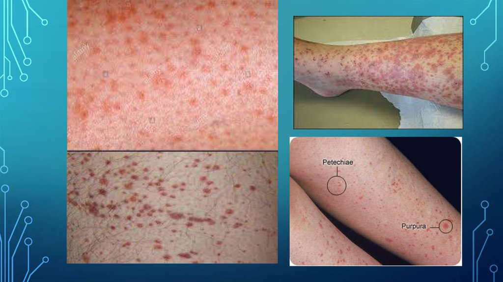 Idiopathic thrombocytopenic purpura - online presentation