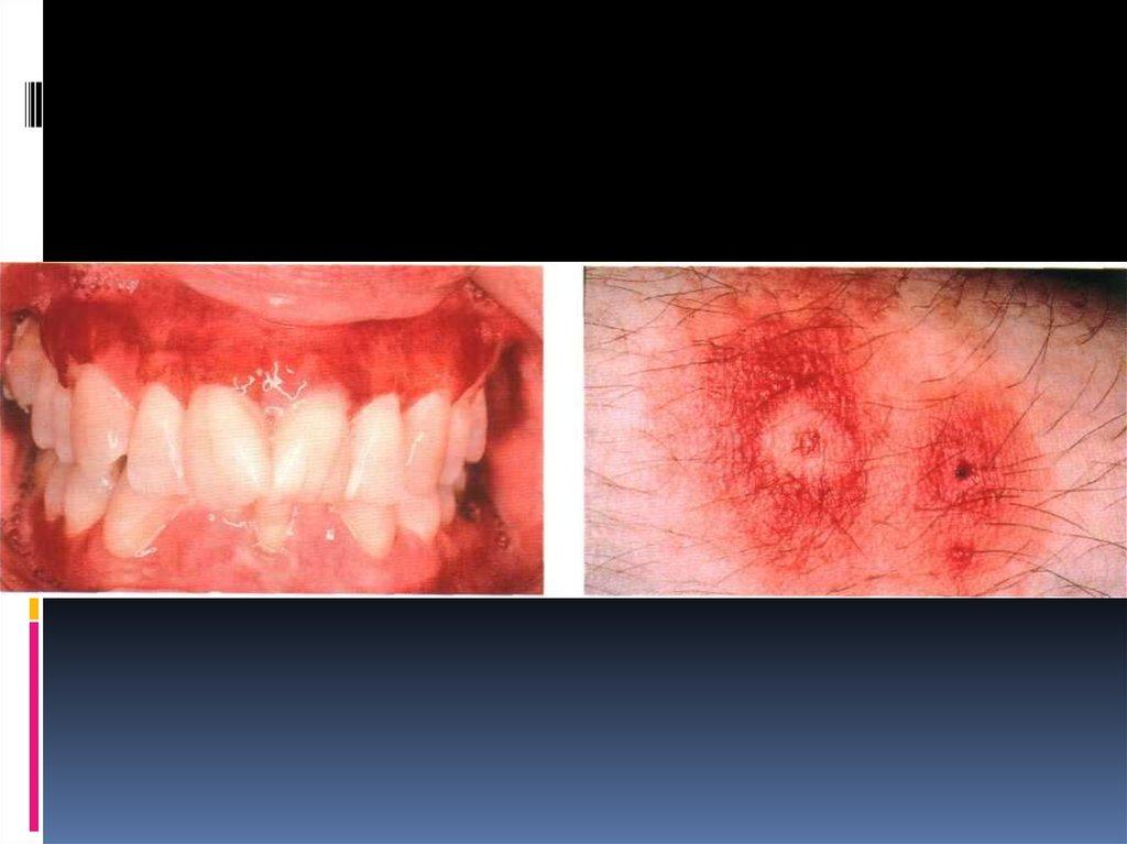 аллергия в полости рта симптомы
