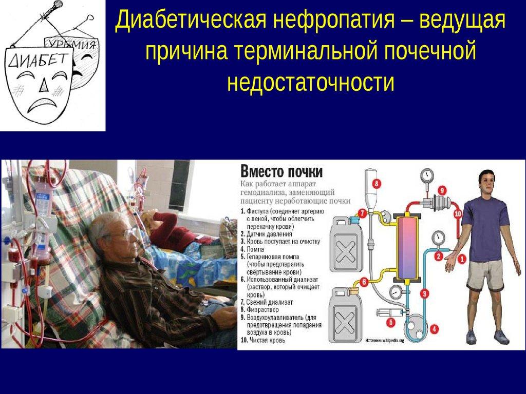 Лечение нейропатии при сахарном диабете