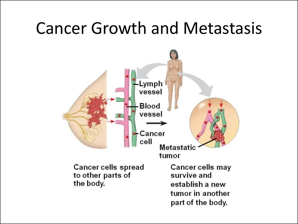 Cancer Growth and Metastasis