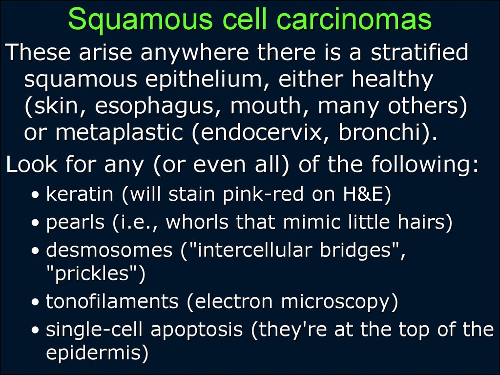 Squamous cell carcinomas