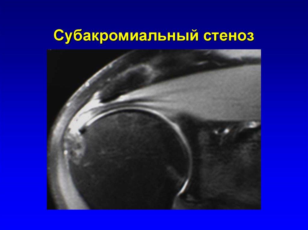 Субакромиальный стеноз плечевого сустава отзывы после операции инновационой по восстановлению коленного сустава