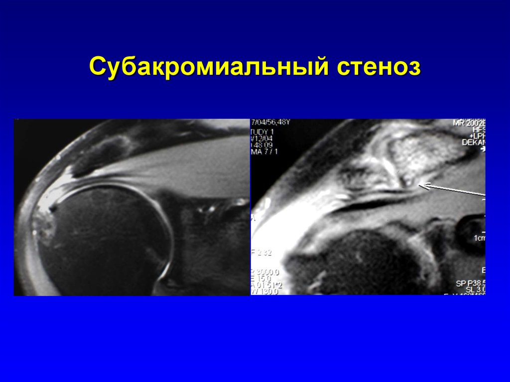 ушиб плечегого сустава