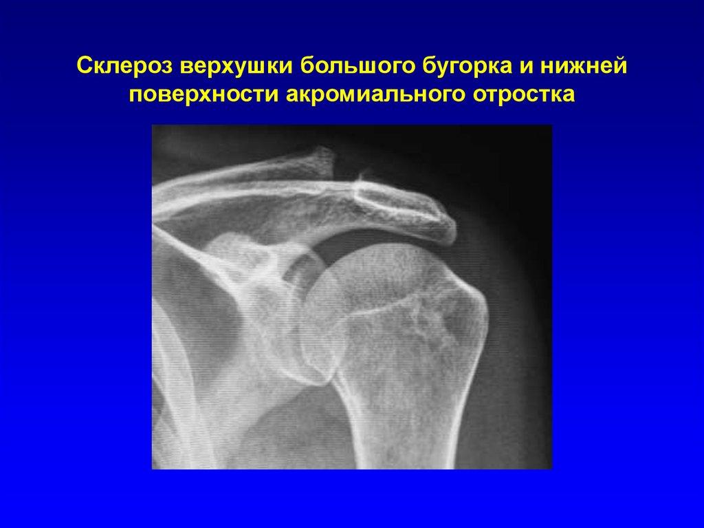 Склероз тканей плечевого сустава воспаленный сустав стопы