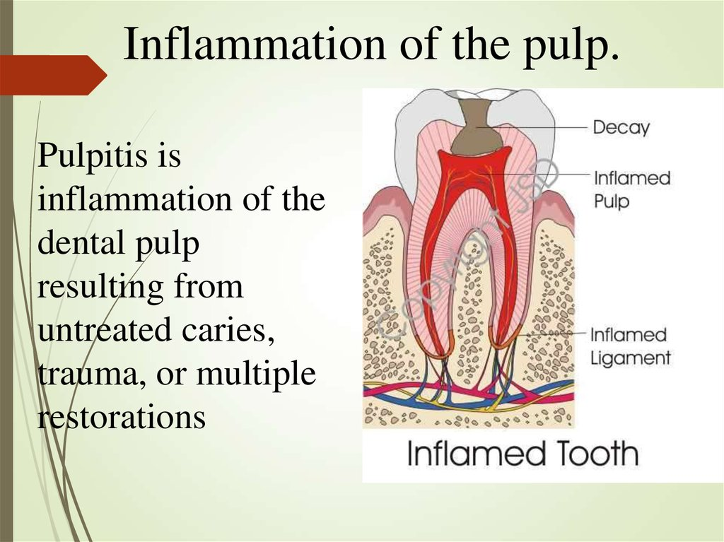 Inflammation of the pulp.