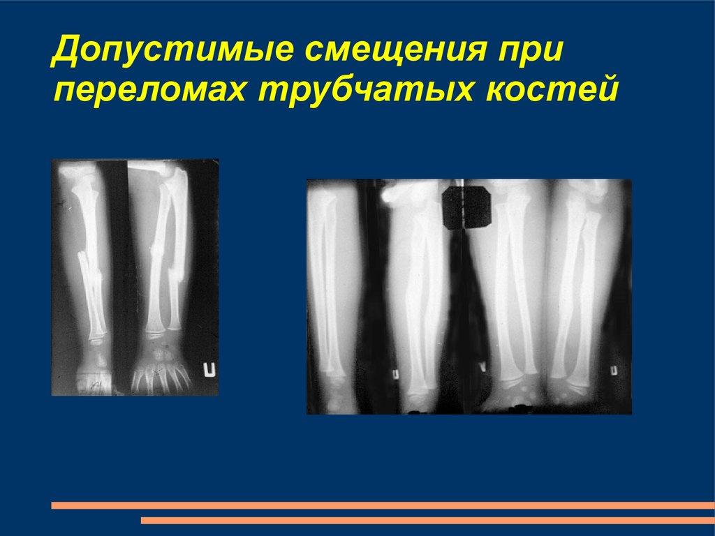 Особености травматологии детского возраста - online presentation