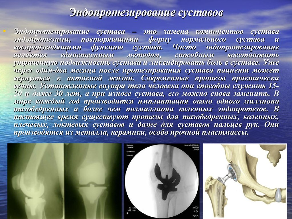 Кто делал эндопротезирование тазобедренного сустава