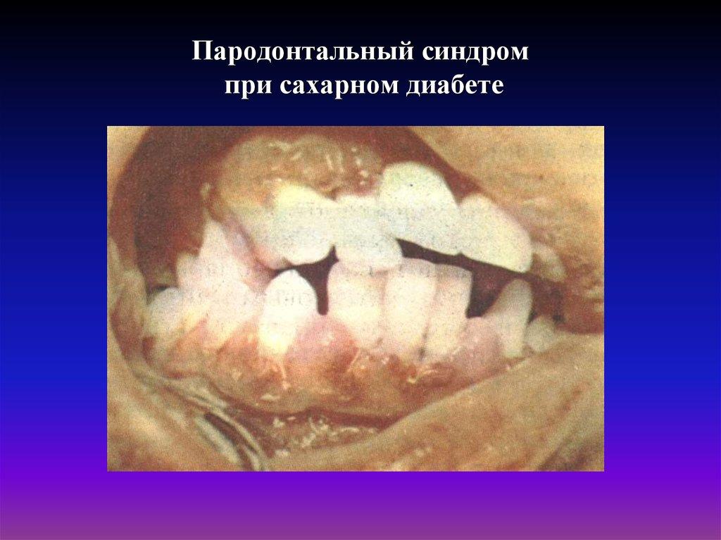 Зубы и сахарный диабет у детей