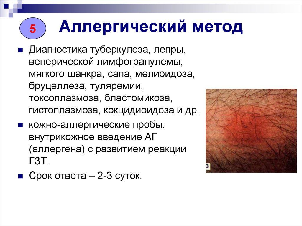 Методы диагностики аллергических заболеваний