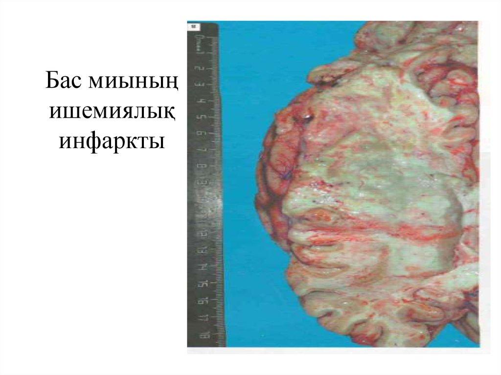 Novomatik ойын автоматтарының жиынтығын жүктеңіз